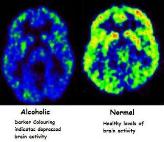 Alcohol-drinking-depression-low-brain-activity1
